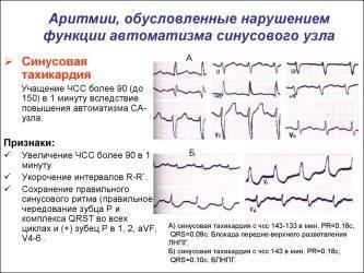 Синусовая брадикардия сердца: что это такое, причины, лечение и прогноз
