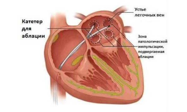 Лечение мерцательной аритмии сердца (фибрилляции предсердий)