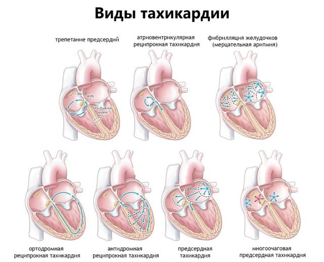 Тахикардия симптомы и лечение