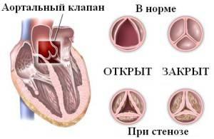 Недостаточность аортального клапана: 1,2,3 степени, лечение, симптомы и причины
