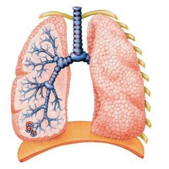 Тахикардия при простуде и орви