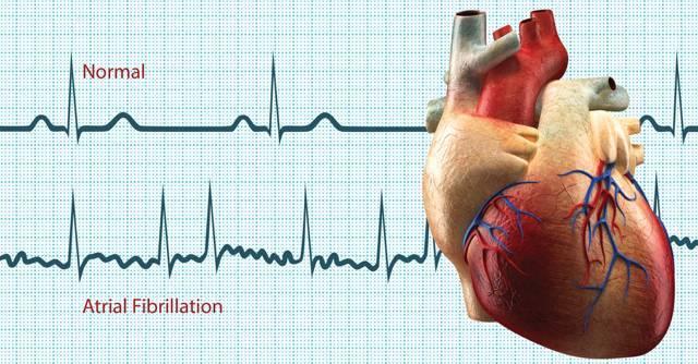 Как сохранить здоровье при диагнозе дыхательная аритмия?