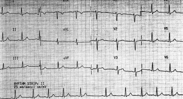 Дыхательная аритмия: что это такое, насколько опасно?