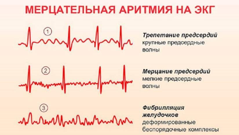 Чем опасна аритмия сердца: типы, последствия, чем грозит