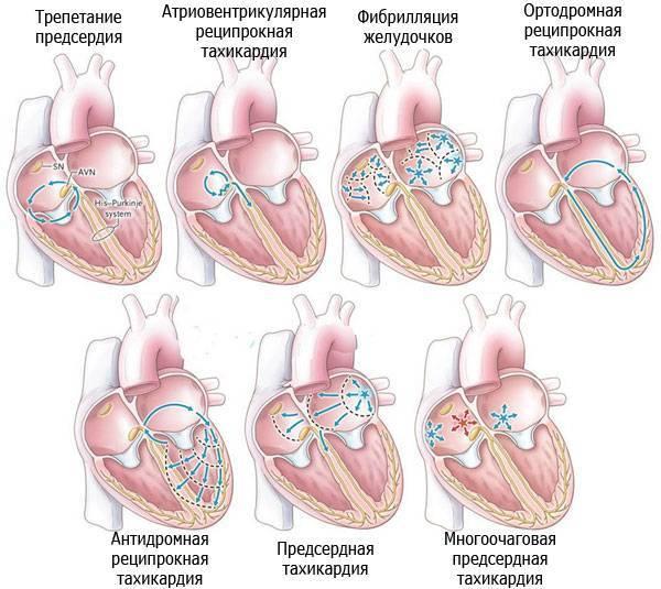 Тахикардия - это что такое? причины, симптомы и лечение тахикардии у детей и взрослых