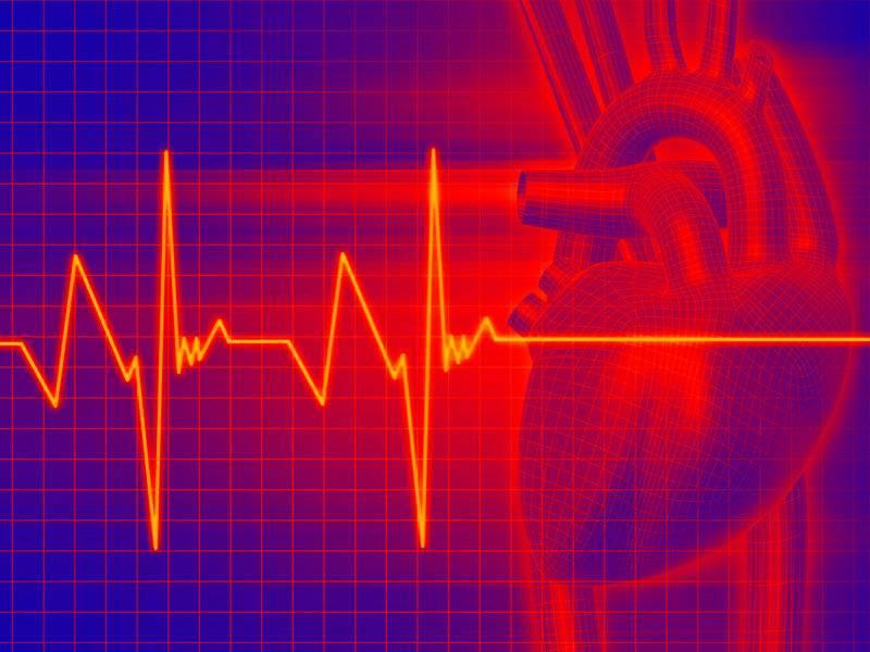 К чему приводит аритмия сердца