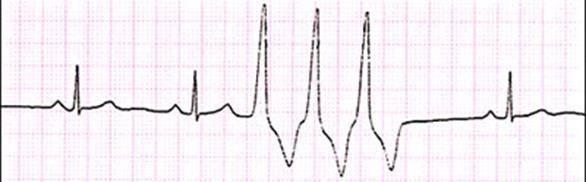 Желудочковая экстрасистолия 1 градации: классификации, клиника и лечение
