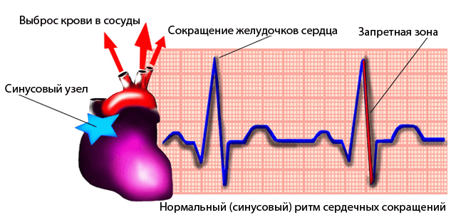 Это нужно знать: что такое синусовая аритмия сердца и чем она опасна