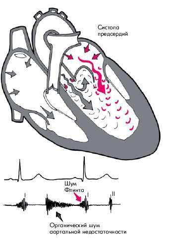 Недостаточность аортального клапана симптомы и признаки