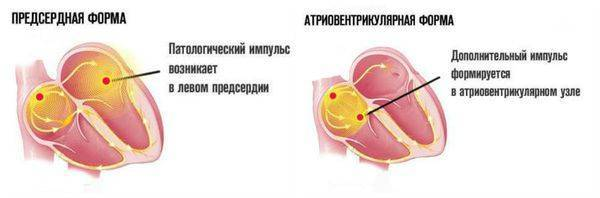 Экстрасистолия. информация для пациентов. - доказательная медицина для всех