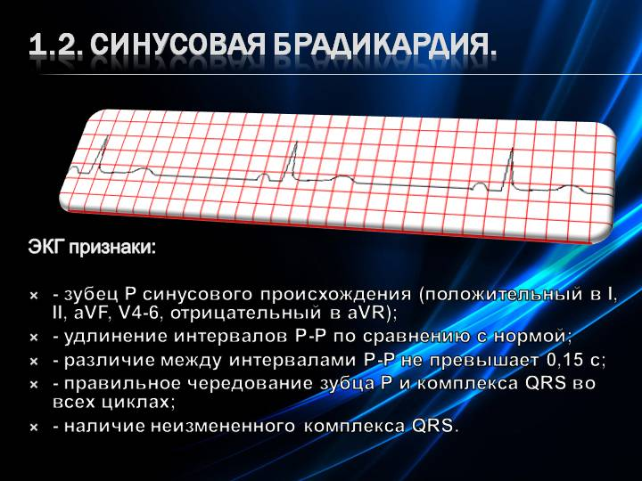 Синусовая брадикардия сердца - что это такое– причины и лечение