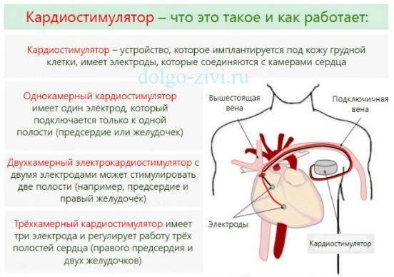 Что такое экстрасистолы, симптомы и лечение экстрасистолии