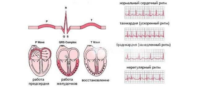 Симптомы синусовой аритмии
