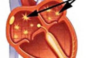 Кардиолог - сайт о заболеваниях сердца и сосудов