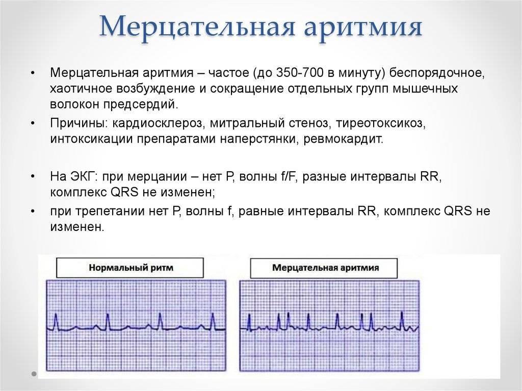 Аритмия сердца – что такое аритмия, нарушение сердечного ритма? аритмия – симптомы, причины, лечение