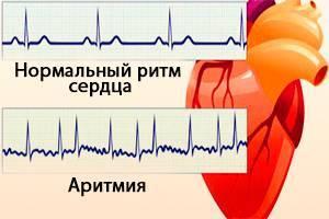Регистрируется патологическое число наджелудочковых аритмий