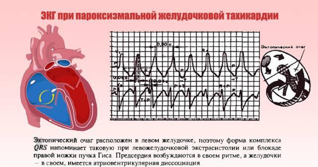 Тахикардия у детей: симптомы и лечение, причины, пароксизмальная форма
