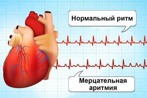 Питание при аритмии сердца