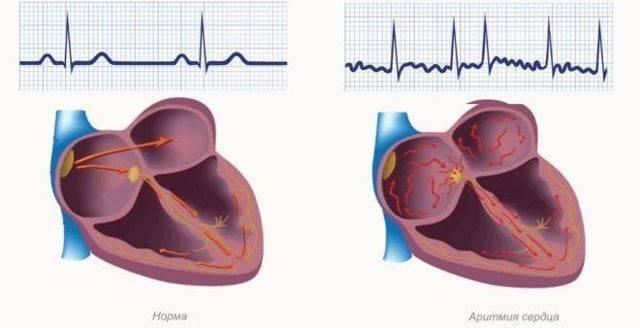 Аритмия сердца: чем опасна, основные виды аритмий