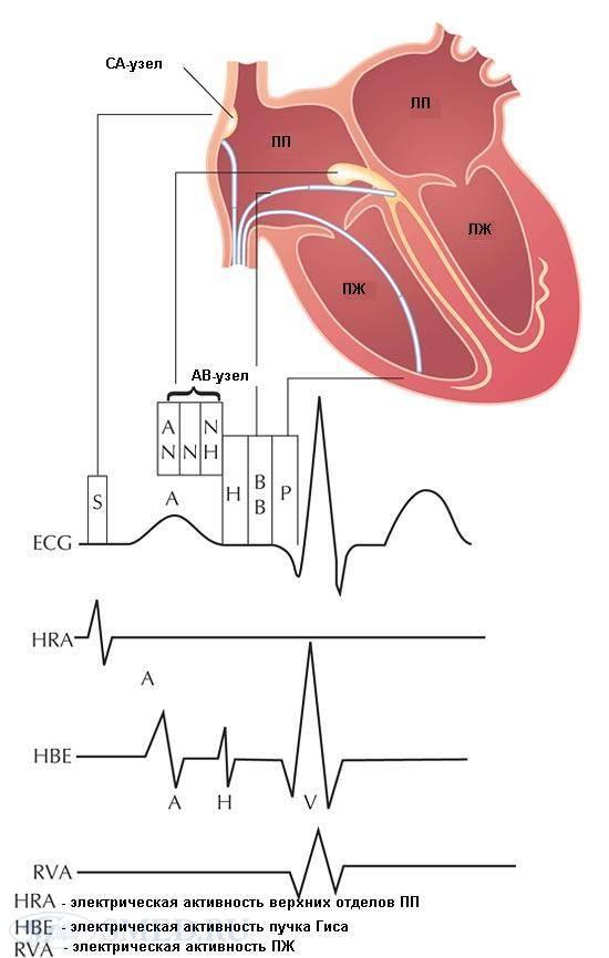 Лечение сердечной аритмии