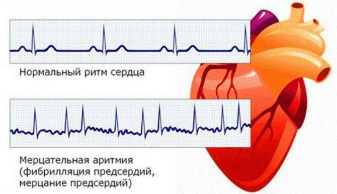 Питание при аритмии