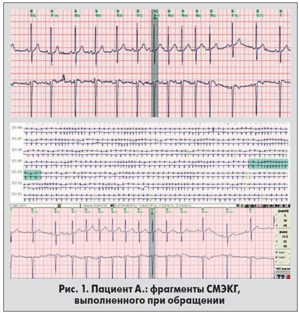 Электросистолы сердца норма у взрослых таблица