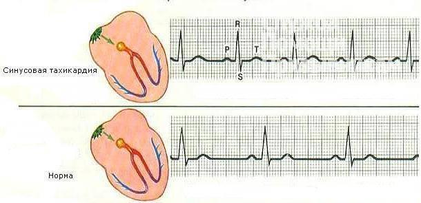 Пульс при кардиостимуляторе.