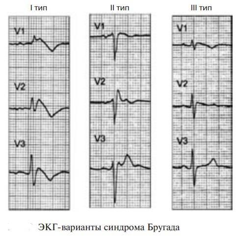 Синдром фредерика: признаки на экг, причины, симптомы диагностика и лечение
