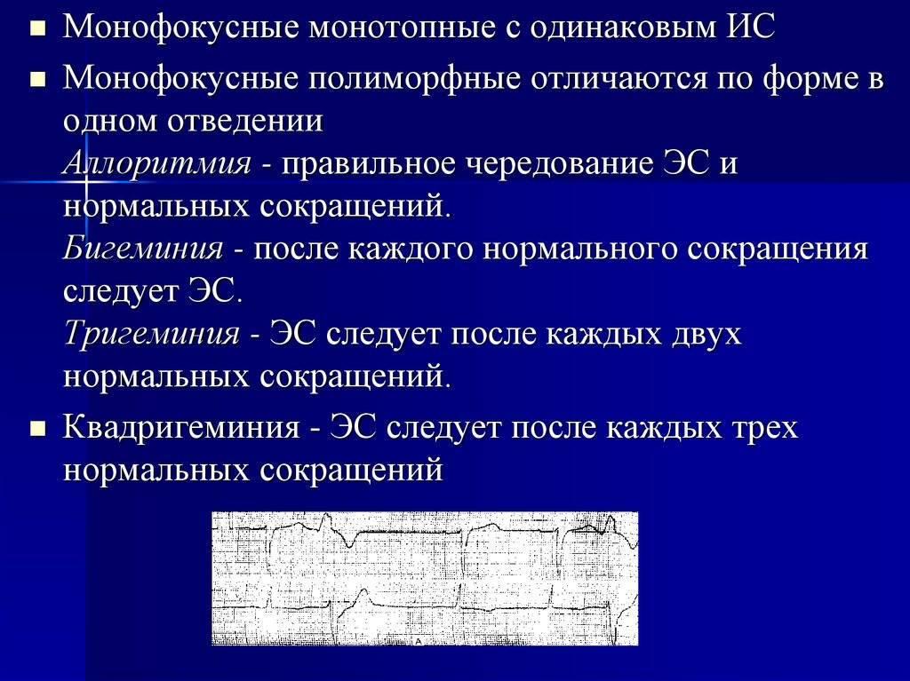 Классификация экстрасистол по лауну
