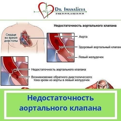 Недостаточность аортального клапана — википедия переиздание // wiki 2