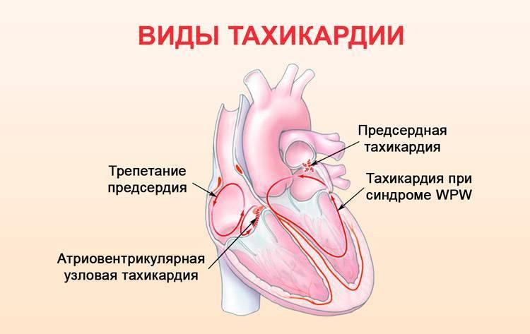 Чем отличается тахикардия от аритмии сердца