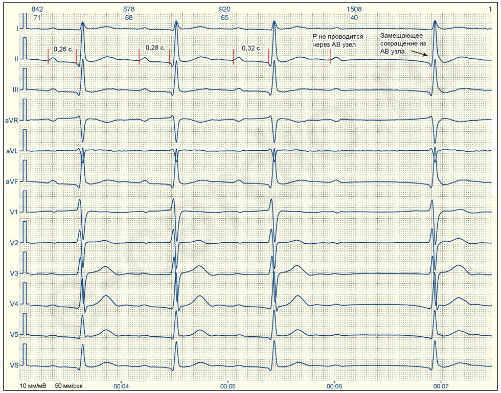 Атриовентрикулярная блокада сердца