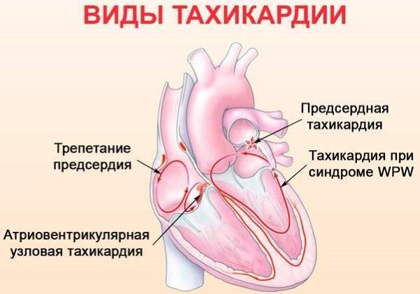 Тахикардия и аритмия