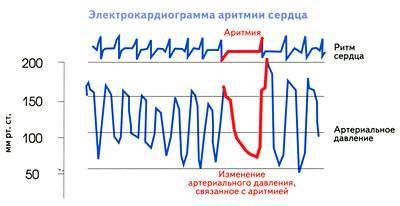 Аритмия сердца последствия