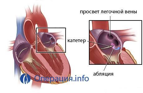 Прижигание при аритмии сердца