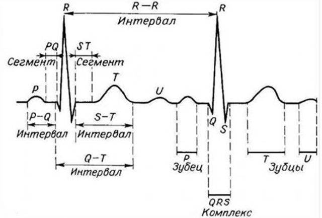 Что такое брадиаритмия сердца