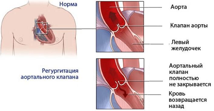 Лечение недостаточности аортального клапана