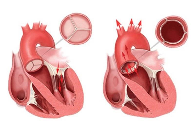 Аортальный клапан и его пороки :: polismed.com