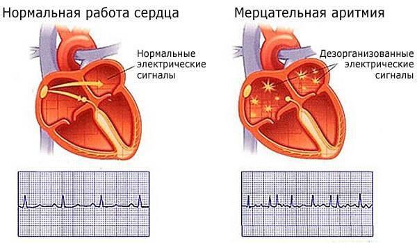 Аритмия сердца — что это такое, признаки, симптомы, лечение, чем опасна, первая помощь при аритмии