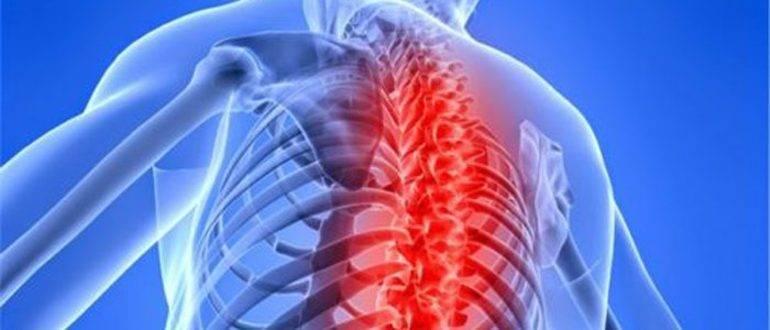 Аритмия сердца и шейный остеохондроз