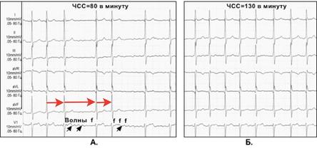 Синусовая аритмия сердца: что это, причины и признаки, лечение и возможные последствия