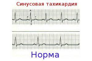 Синусовая аритмия у ребенка – что такое дыхательная синусовая аритмия? нарушение сердечного ритма – лечение
