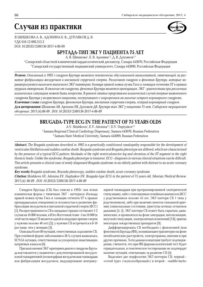 Этиология синдрома бругада
