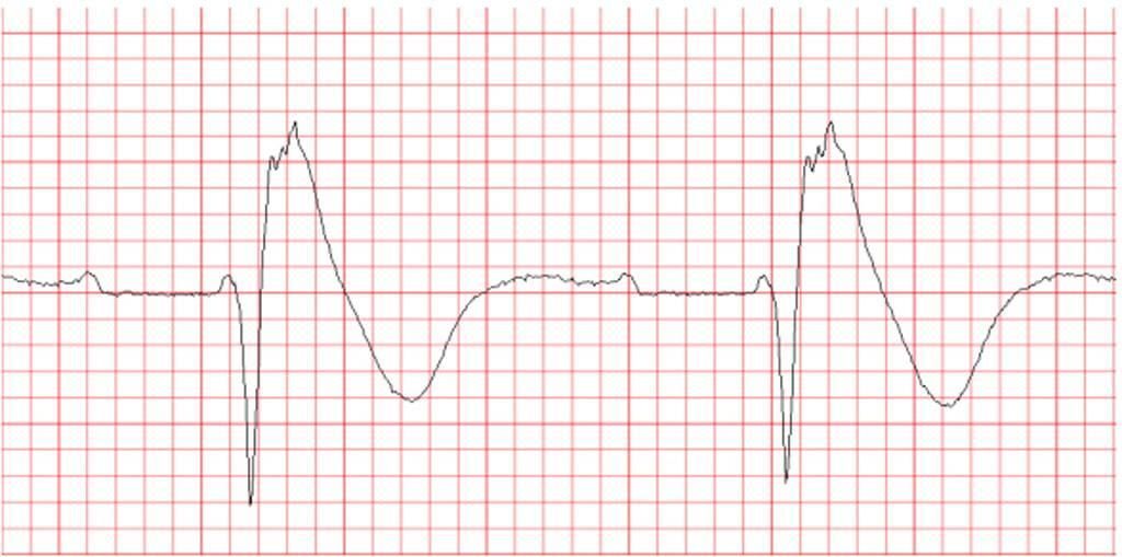 Синдром бругада: причины и симптомы, лечение и прогноз жизни