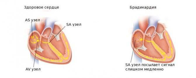 Аритмии. учащение (тахикардия) и урежение пульса (брадикардия)