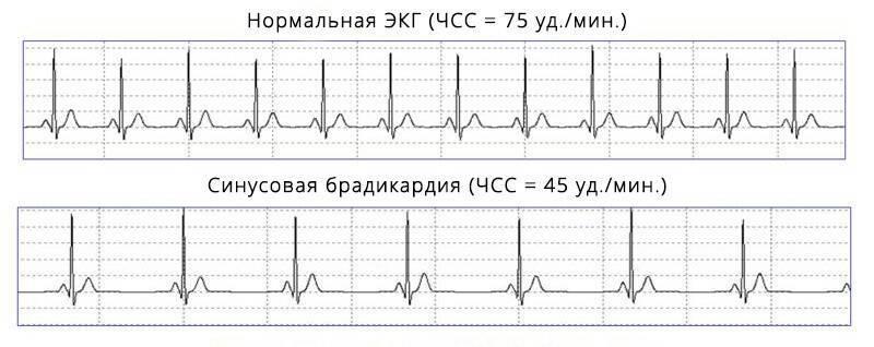 Что это такое — синусовая брадикардия сердца? общая характеристика и виды заболевания