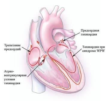 Тахикардия. симптомы, причины, приступы, профилактика и лечение тахикардии у детей и взрослых