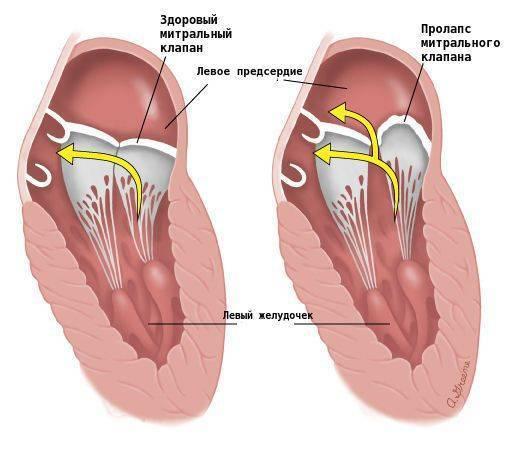 Наджелудочковая (суправентрикулярная) экстрасистолия: норма в сутки, опасность и лечение
