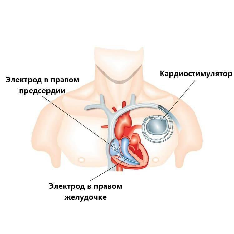 Аритмия – причины, симптомы и лечение нарушений сердечного ритма