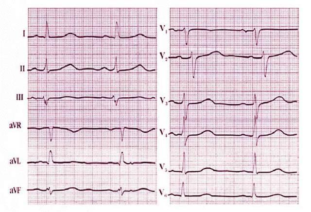 Синусовый ритм сердца: особенности и норма